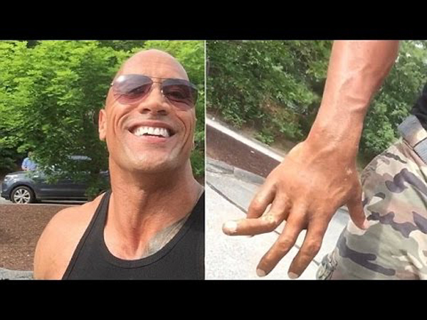 Dwayne 'The Rock' Johnson NASTY Finger Injury - Still Smiling!